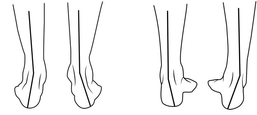 Pronation Supination
